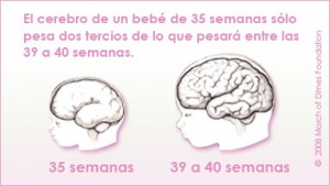 BrainCardSpanish