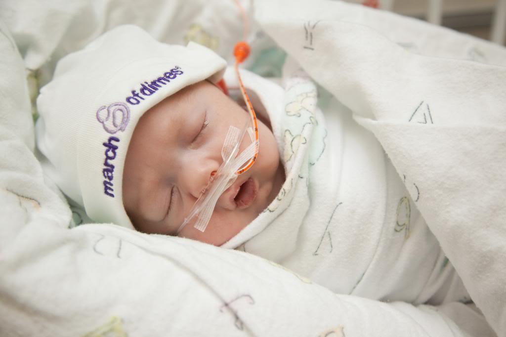 Los bebés prematuros y los problemas de salud a largo plazo